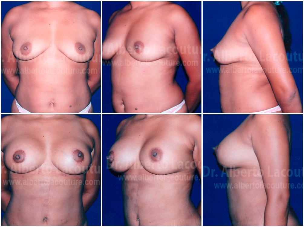 Prótesis mamarias para el aumento de senos: tipos,