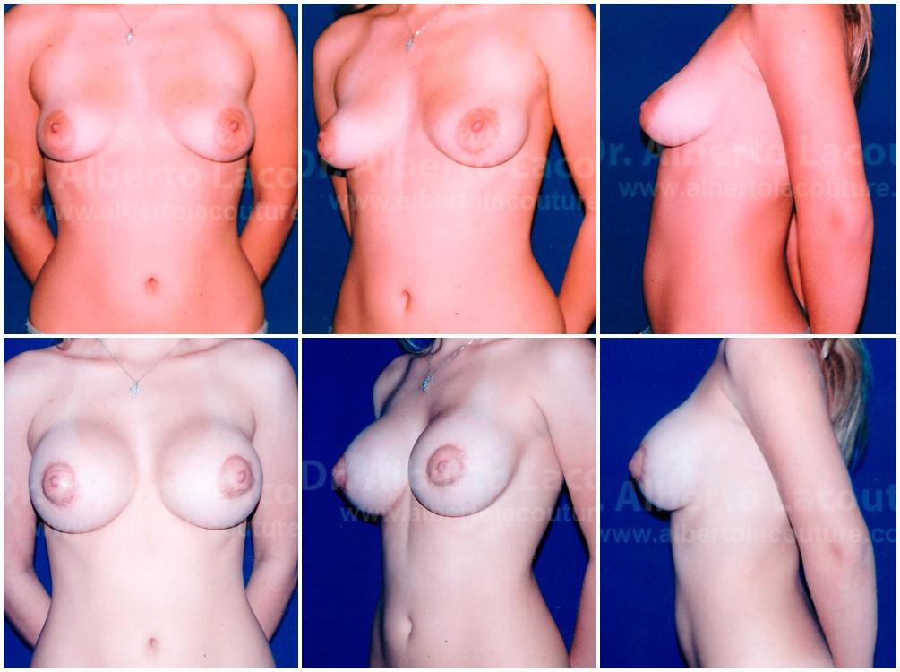 Envoltura universal de aumento de mama